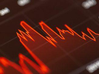 revisión de ontega - stocks de hoy