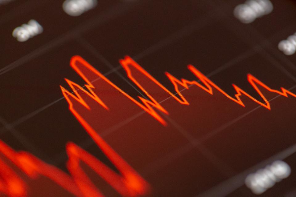 revisión de ontega – stocks de hoy   Brokeropiniones.es